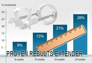 Image from sizegeneticsbuy.com